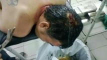 Luciano Esteban Álvarez. Herido en la protesta. Foto de la senadora Esperanza Martínez